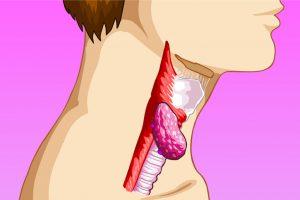 Рак горла у курильщиков