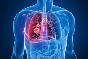 Рак легких из-за курения