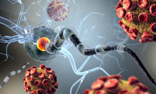 Рассеянный склероз из-за курения