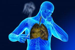 Появление кома в горле при бронхите курильщика
