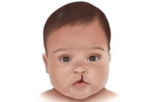 «Заячья губа» - следствие курения матери при беременности