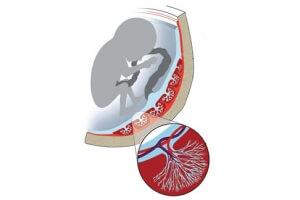 Уменьшение кровоснабжения плода при курении матери