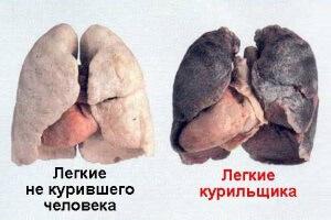 Сравнение здоровых легких и легких курильщика