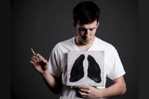 Отравление легких сигаретным дымом