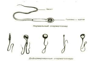 Ухудшение качества и формы сперматозоидов при курении
