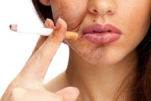 Негативное влияние курения на внешность