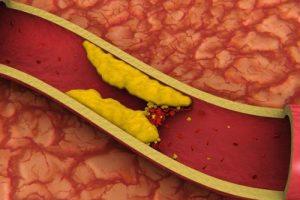 Понижение уровня холестерина в крови при отказе от курения