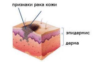 Рак кожи из-за курения