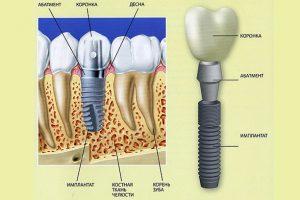 Схема имплантации зуба