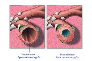 Обострение бронхита при курении