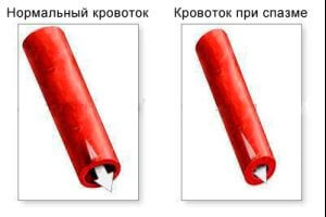Сужение сосудов некоторое время при отказе от курения