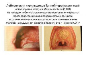 Лейкоплакия Таппейнера