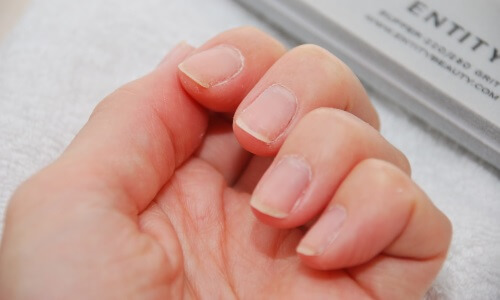 Влияние курения на ногти