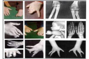 Последствия курения при беременности