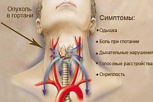 Рак гортани - следствие курения