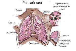 Рак легких как следствие курения