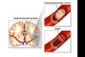 Возникновение тромбов при курении