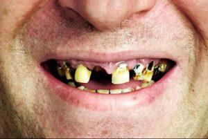 Вред курения для зубов