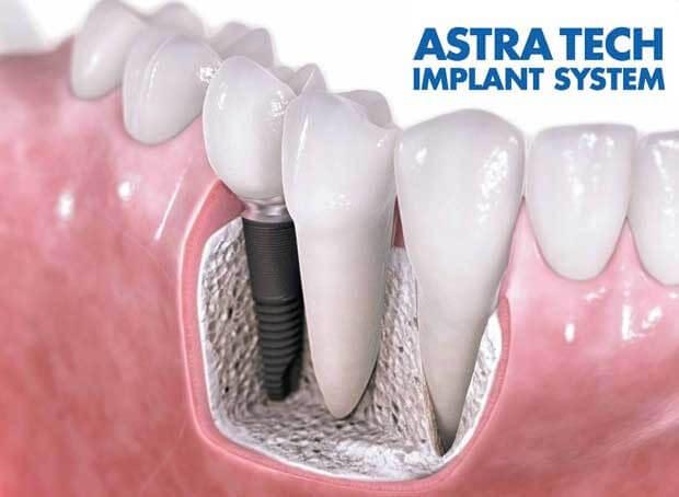 Импланты «Аstra Tech» - новое слово в имплантологии