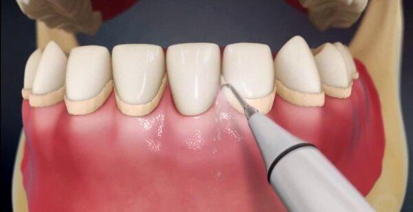 Профессиональная ультразвуковая чистка зубов