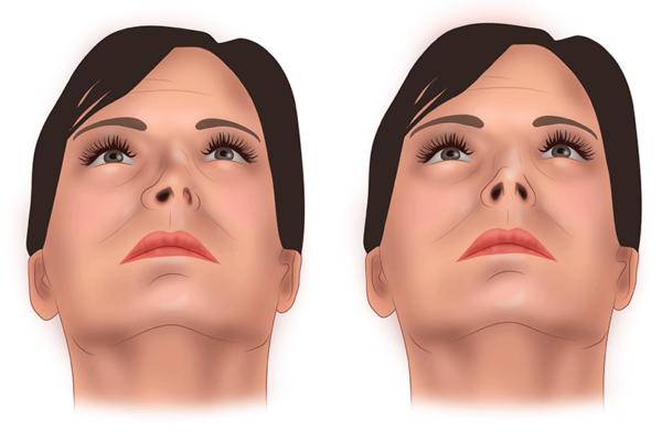 Безболезненное восстановление формы искривленной носовой перегородки