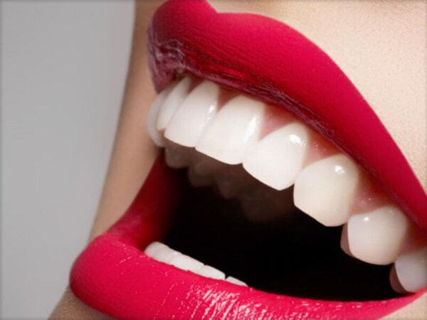 Отбеливание зубов методом Beyond в Нижнем Новгороде