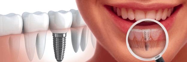 Качественная имплантация зубов в Киеве