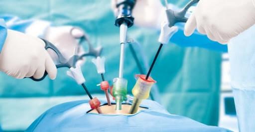 Лапораскопия в урологии, проводимая хирургом Люлько С.В.