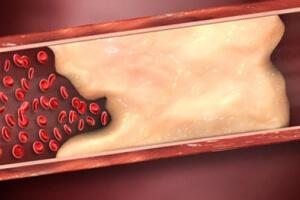 Образование тромбов в сосудах из-за курения