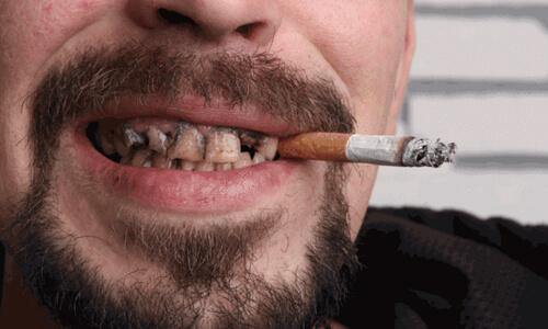Проблемы с зубами у курильщиков
