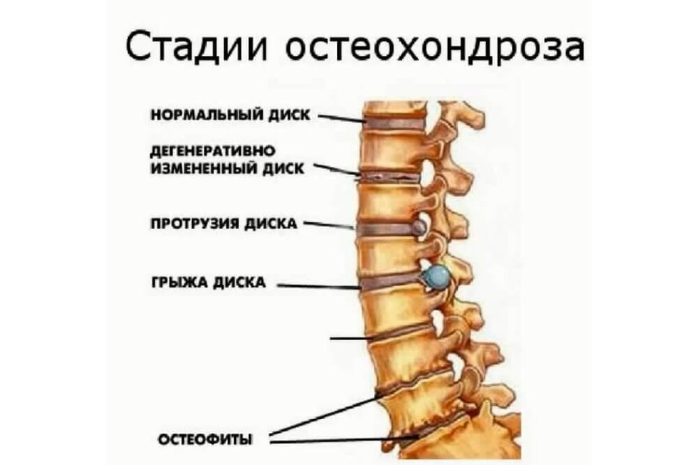 грудной остеохондроз тремор