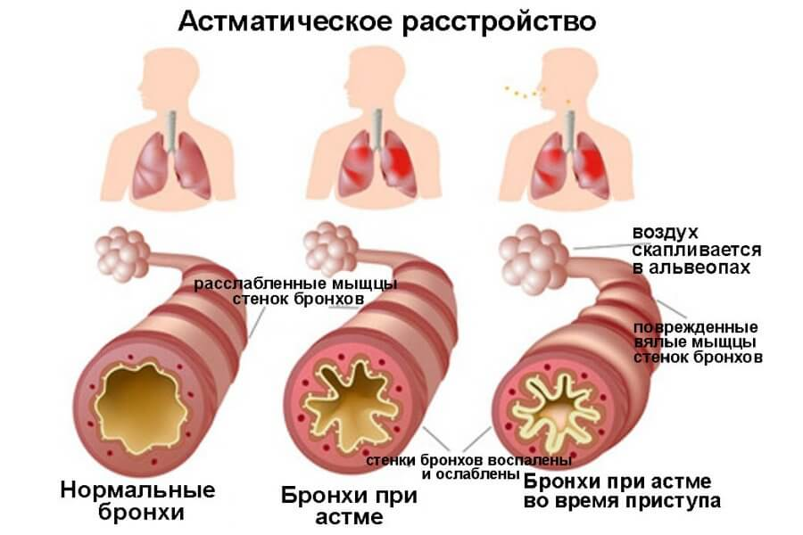 Как вылечить кашель в домашних условиях быстро 2018 19