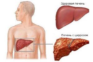 Цирроз печени - следствие курения