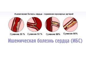 Стадии ишемической болезни сердца