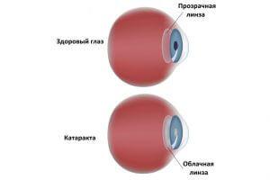 Развитие катаракты при курении