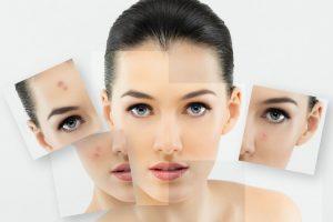 улучшение состояния кожи после отказа от курения