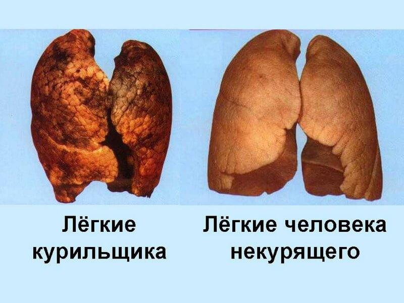 Бросить курить на 33 неделе беременности