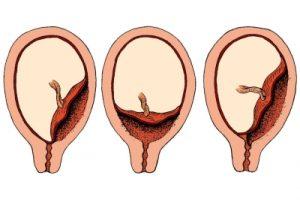Опасное предлежание плаценты при курении во время беременности