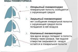 Виды пневмоторакса легких