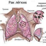Рак легких как последствие курения