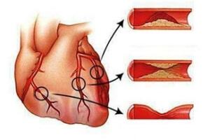 Спазм сосудов при курении и недостаток кислорода