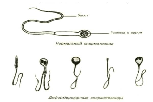 potentsiya-normalnaya-spermi-net