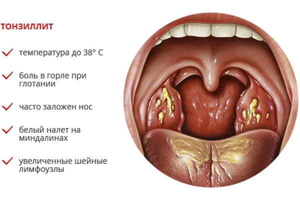 хронический тонзиллит запах изо рта как избавиться