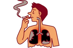 Сильный вред курения для легких