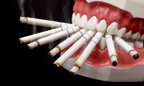 Проблема никотиновой зависимости