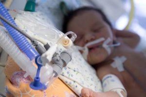 Заболевания легких у ребенка