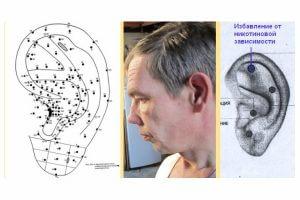 Ихбавление от курения за счет влияния на акупунктурные точки уха