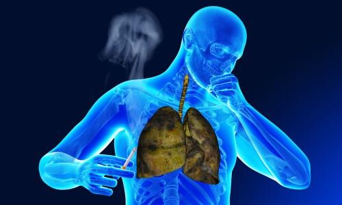 Курение и бронхит