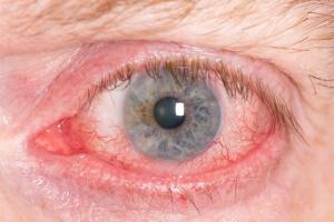 Покрасневшие глаза при курении марихуаны