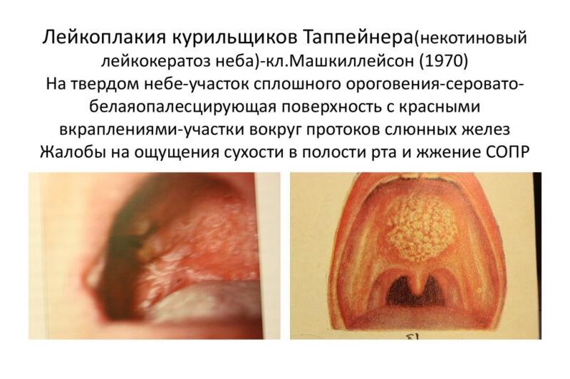 Лейкоплакия курильщика: причины, симптомы и лечение
